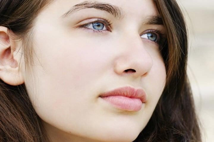 szép bőr kémiai hámlasztás