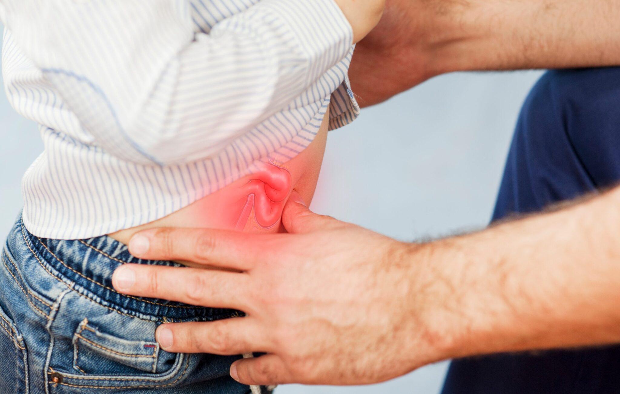 A lágyéksérv és köldöksérv kezelése